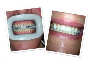 teech whitening kansas city dentist