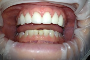 before and after cerec crown north kansas city