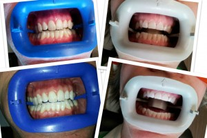 teeth whitening parkville mo