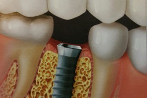 dental implant surgery north kansas city