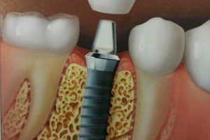 tooth restorations attached to titanium screw