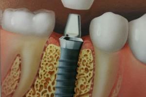 tooth restorations attached to titanium screw
