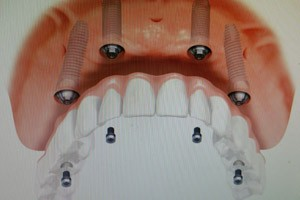 titanium used for dental and  bone implants orthopedic joint replacements