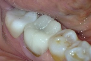 image of molar after same day crown restoration in north kansas city