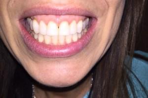 orthodontics briarcliff mo