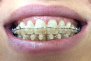 orthodontics riverside mo