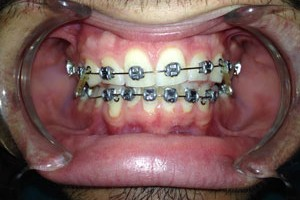 orthodontist in north kansas city area