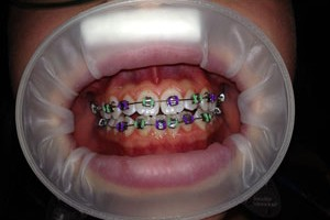 children and adult braces in north kansas city