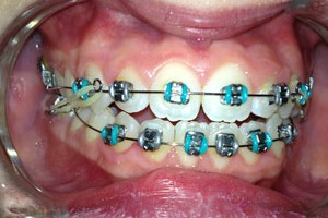 braces with color north kansas city