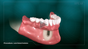 implant_retained_snap_in_denture