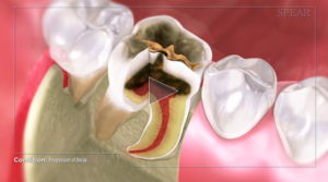 progression_of_tooth_decay