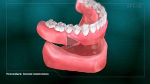 removeable_denture