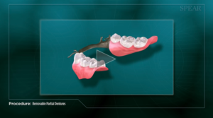 removeable_partial_denture