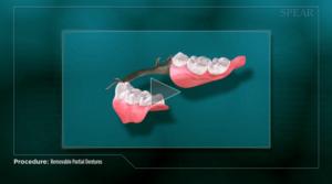 removeable_partial_denture