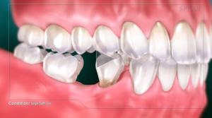 single_tooth_loss